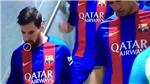 Messi phải phẫu thuật sau khi bị gãy răng ở trận 'Kinh điển'