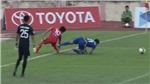 CẬN CẢNH: chấn thương đầu tiên của Công Phượng tại V-League