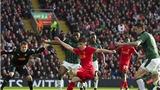 Liverpool 0-0 Plymouth: Klopp trả giá đắt vì dùng 'lúa non'