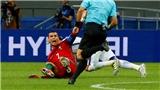 Fan bức xúc khi Ronaldo bị Chile 'chăm sóc' quá nhiệt tình
