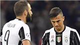 Vấn đề của Juventus là tiền bạc và một chút duyên may