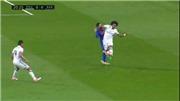 Cận cảnh Messi nằm sân, đổ máu sau pha va chạm với Marcelo