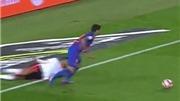 Ngoặt bóng siêu hạng, Luis Suarez khiến đối phương nằm sân rồi chấn thương