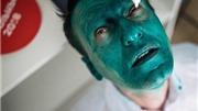 Ứng viên Tổng thống Nga bất ngờ bị kẻ lạ mặt phun thuốc nhuộm xanh