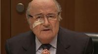 Cấm hoạt động bóng đá 8 năm với Sepp Blatter và Michel Platini