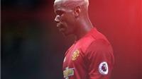 Không đội bóng nào ở châu Âu nợ khủng khiếp như Man United