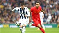 Liverpool lỡ vô địch không chỉ vì thủ tệ
