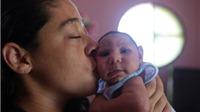Trung Quốc ghi nhận trường hợp nhiễm virus Zika đầu tiên