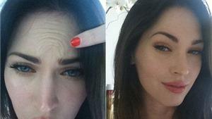 """Các chuyên gia phẫu thuật thẩm mỹ """"bóc mẽ"""" Megan Fox"""