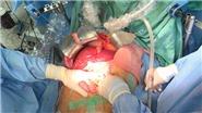 Bệnh viện Trung ương Huế lập kỷ lục 21 ca ghép tạng trong vòng một tháng